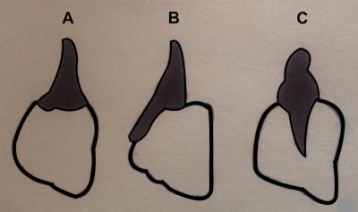 Schémas des trois différents types communs d'attache dentaire chez les reptiles. (A) acrodonte (B) pleurodonte (C) thécodonte