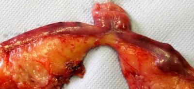 Hémomètre secondaire à un adénocarcinome chez une lapine