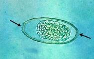 Bioperculate egg of Syngamus trachea