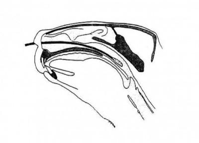 Deep nasal swab