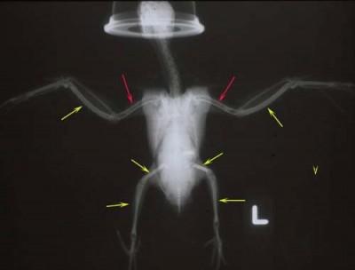Yellow arrows illustrate increased medullary bone density.