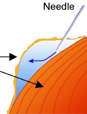 Subcutaneous fluid diagram